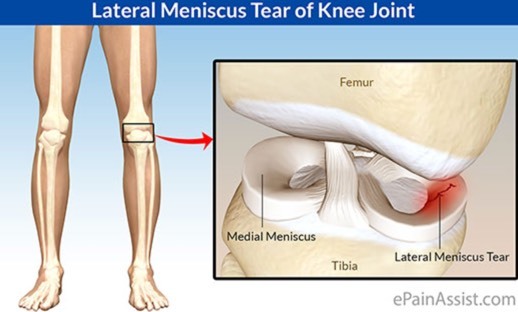Triallan - Meniscus lateral 2